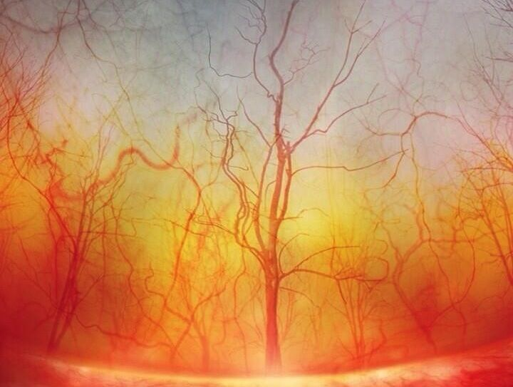 EyeVeins